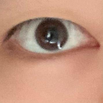 ※閲覧注意!! 私は目元がかなり不細工で視界に入れないようにされたり逆に嫌な顔ですごいガン見されたり気持ち悪いと言われたりします。 一重で四白眼で黒目が小さめなのですがカラコンをしても四白眼のままになり全く可愛くなれません。 アイプチなども試しましたが痒くなりダメでした。 二重整形を考えているのですがマシな目になると思いますか? あと私は今太っていてBMIが28.5くらいあるのですがどのくらい痩せてから整形したほうがいいと思いますか? どなたか教えてください。