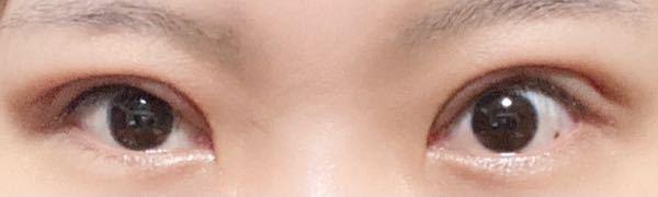 眼瞼下垂の術後経過について 術後も2週間と3日 抜糸後3日です 二重より上の部分(眉下)部分もまだ腫れてるんでしょうか? 眉した部分ももう少しフラットになるんでしょうか 明らかにハム目ですよね、、、