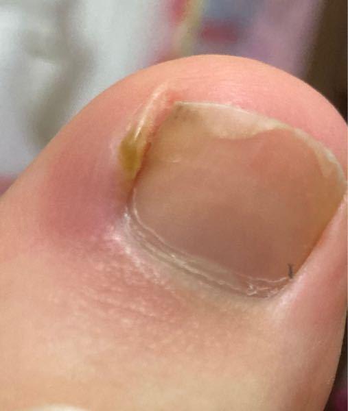 足の親指周辺が腫れて、黄緑のできもの?みたいなのができて痛いです。この黄緑の物はなんでしょうか。