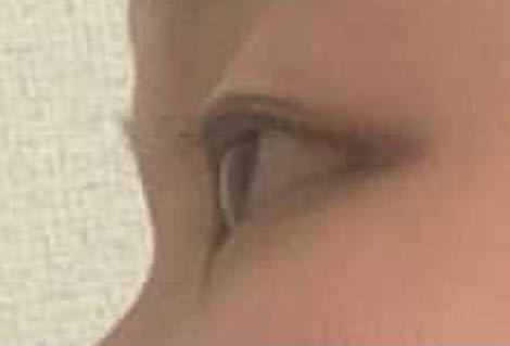この目は出目ですか?奥目ですか?