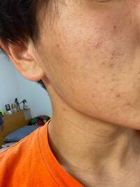 クレーター肌に困っています 何かおすすめの治療はありますか?