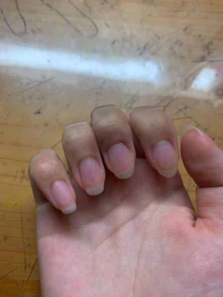 爪の切り方 人差し指も薬指のような形の爪にしたいのですが、 どうすればいいでしょうか?