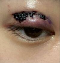 【閲覧注意】 15日に全切開をしてきました。 右目の出血が多くて、ラインの上に血の塊ができていて目が開きにくくなってきたのですが、この血の塊は取らない方がいいでしょうか?