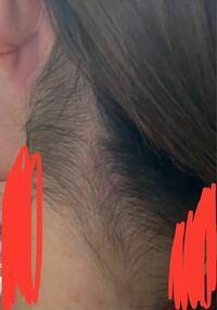 お恥ずかしながらうなじの毛がこんな感じでやばいです。自分で剃ったこともあるのですが、生えてくる毛が太いのでチクチクした感じで生えてしまいます。どうしたらいいのでしょうか。恥ずかしくてアップにできません 。