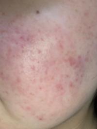 頬の写真です。 荒マスクで触れている部分の赤みがすごいです。?頬は乾燥肌で乾燥によるニキビが多いです。スキンケアはアクアレーベルの美白化粧水にヒルロイドローションを塗っています。赤みが引くものなどかあれば教えてほしいです。一度、皮膚科に行った方が良いのでしょうか