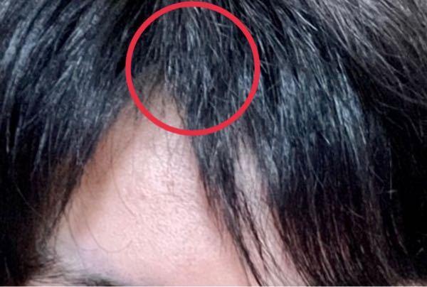 前髪切るのミスってしまいました。この上に被さってる毛?を切りすぎてしまったのですが、どうすればいいでしょうか…