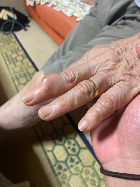 祖母の手にできていました 三ヶ月前からあるそうです。 なにがわかりますか。? 痛みはないようです。