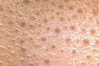 このような毛穴の汚れを綺麗にするにはどうしたらいいですか? 全然綺麗になりません…