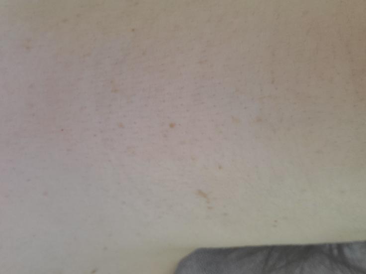 画像が横になってしまいましたが、首の写真です。以前、あせもではだあれしてから、画像のように毛穴が目立ち、皮膚にハリもなくなってしまいました。最近は、顔のクレンジング時に首もDUOのブラックリペアを使用し ていますが、あまり変わりありません。何かいい手入れ方をご存じのかた、教えてください。 また、ホホバオイルでのお手入れも気になるのですが、どうなんでしょうか? よろしくお願いします!