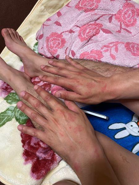 アレルギーについて質問です。 彼氏が夜寝る前に突然赤いアザのようなものが 膝や肘、首の後ろ、手に突然出てきました。 これは何かのアレルギーでしょうか? 同じ症状が出た方はいませんか?? 本人...