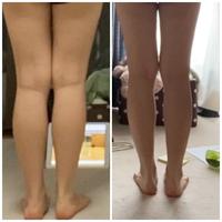 158cm49㌔太もも52センチです。  3キロ痩せて、足がマイナス3センチ弱になったのですが、分かりますか?変化はありますか?左から右です。