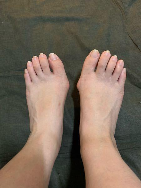 昔から外反母趾です。 時々、右足の外反母趾が痛むのですが、この外反母趾は結構ひどいのでしょうか? このレベルだと病院行ったらどのような治療法になるのでしょうか?