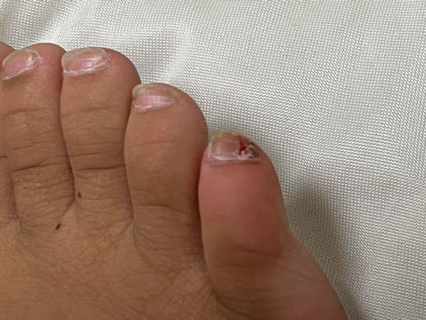 これ切ったら血ぶしゃーなります?