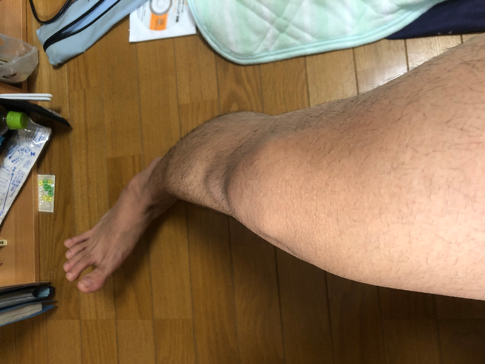10代男です。 最近自分の足の形?というか骨のかたち?というか骨格?にものすごく違和感があります。 膝頭を前に向けて両膝合わせようとしたらあれ?合わない…と思いまして… これは一体どういう状態な...