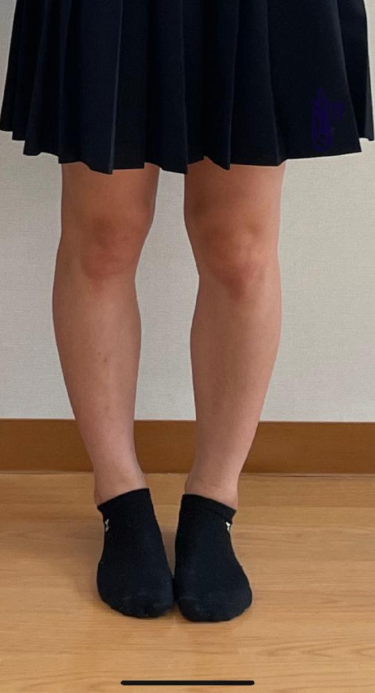 私はO脚なのですががに股です。捻挫を沢山しているせいか足首が外に逃げてしまいます。韓国人アイドルみたいなまっすぐな脚にしたいんですけどどのようなトレーニングをするべきですか?
