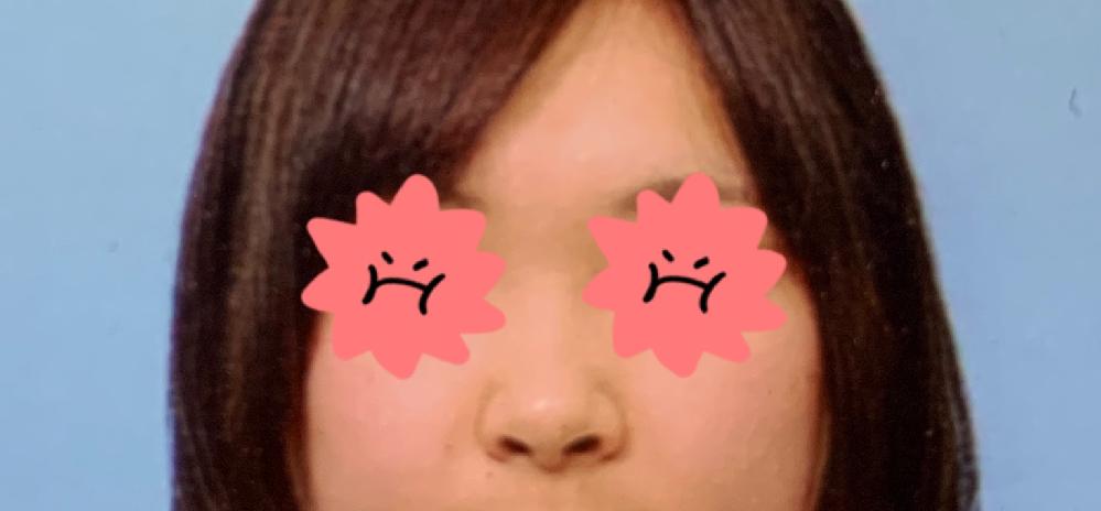 この鼻の形は豚鼻でしょうか?だんご鼻でしょうか? 自分の鼻の形が気になります。鼻の穴が見えてるのは変ですよね?