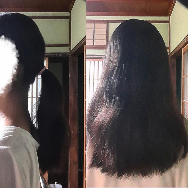 生まれた時からずっとある自分のくせ毛が大嫌いです… みんなにくるくるで可愛い、巻いとるみたいでいいなど褒めてはくれますが、やっぱりストレートでサラサラな髪に憧れます。 この夏休みに縮毛矯正またはストレートパーマなどやってみようと思っているのですが、私の髪の毛はどちらが効果的でしょうか? アドバイスください 出来れば私の髪の癖の強さを5段階で教えてくれれば嬉しいです(´;ω;`) ちなみにこの写真を撮った時はいつもより癖が少ない気がしました。