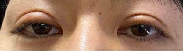 眼瞼下垂と二重形成の切開手術を受けて、3か月になりますが、瞼がハム目のような感じになっています。 手術後1か月くらいからあまり変化がなく、一生このままなのではないかと不安です。 これは失敗なのでしょうか。 それとも、改善する可能性があるのでしょうか。
