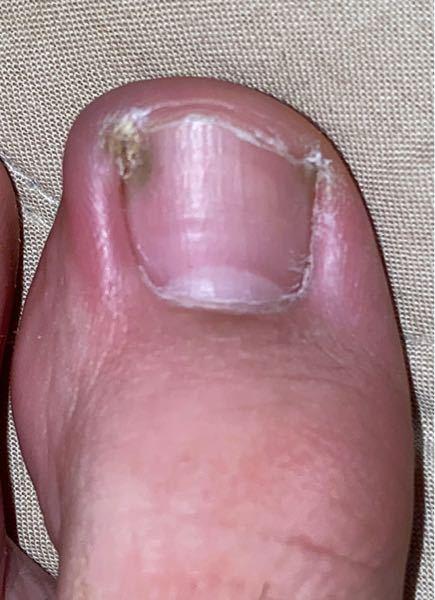 【閲覧注意です。】 足の親指の爪の色が濁っていて皮膚が硬くなってしまっているのですが、これは爪水虫でしょうか? 教えていただきたいです。