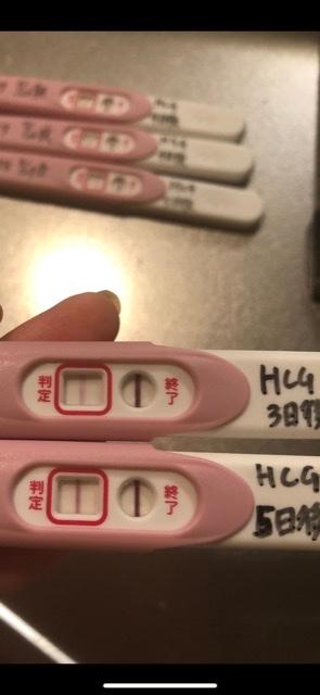 顕微授精後にHCG注射を打ちました。 以前、10日程経ってからじゃないと 検査薬では判断できないとのお言葉を 頂いたのですがあきらかに2日前より 判定線が濃くなっているので 期待しています。 (...