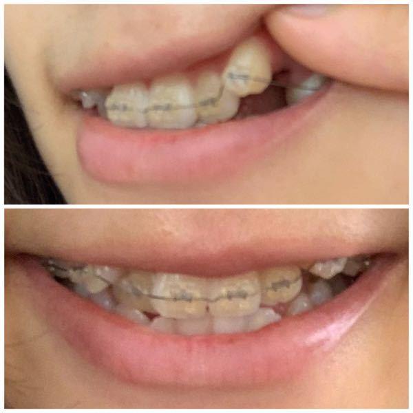 叢生で矯正始めました。この八重歯は何ヶ月位で引っ込みますか? 全体は2年(しっかり通えば少し早く終わる)と言われています。 八重歯が元々出てるのに矯正を付けて更に出手しまったので、こいつが前歯...