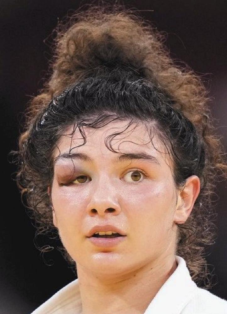 マディナ・タイマゾワ はまだ敗者復活で戦う力が残ってると思いますか?