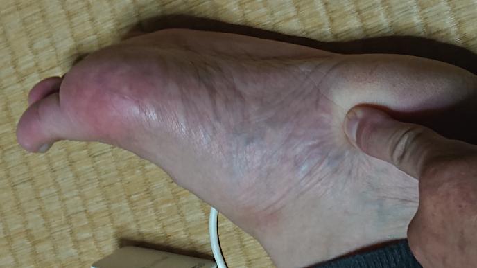 1ヶ月ほど前から左足の、指を指した部分が痛いのですが何ででしょうか? 痛風ですか?