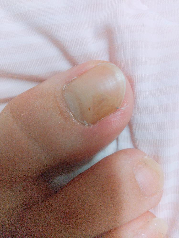 汚い写真すみません…。 これって爪白癬ですか? 以前、足に重たいものが当たった気もするのですが、詳しくは覚えていなくて…。 痣なのか白癬なのか気になって投稿しました