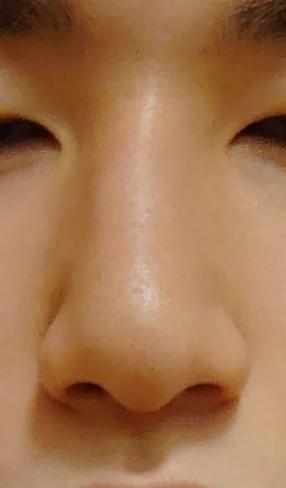 鼻がこのくらい曲がってる男って生理的に無理でしょうか?