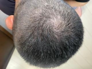 坊主にしたのですがこれは薄毛、ハゲですか?