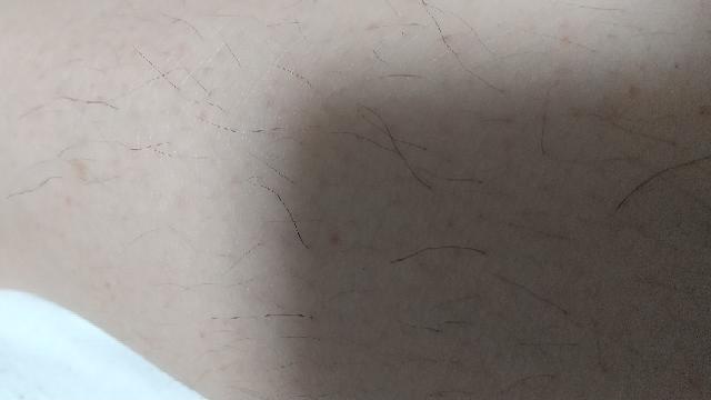 女です。めっちゃ太い毛が所々に生えてるんですけど、これって普通の毛の太さなんですか? 最近太くて長くなった気がします。 男性ホルモン多く出てるんですか? 生理止まってるの関係ありますか?