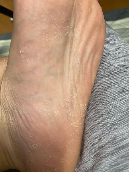 両足裏の皮がめちゃくちゃ剥けるのですが、これは水虫ですか? 20歳男、末端冷え性、痒みはありません。