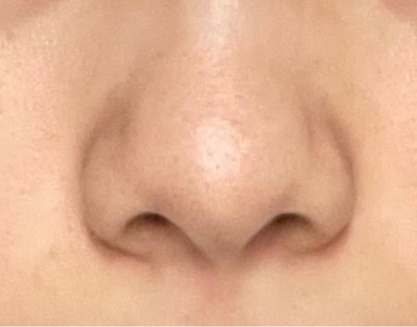 ドアップだし汚くてすいません このデカい鼻はマッサージやダイエット等で小さくなりますか、? 団子鼻だしにく分厚いしでもうマイナスな部分しかないです