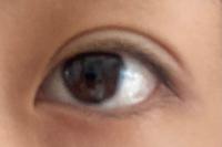 埋没をして1週間経つのですが、これはまだ腫れていますか?つっぱり感は少し残っています。目に力を入れなければ軽い眼瞼下垂のようになっています。末広〜MIX型希望なので幅が広くて少し不安です(;_;)