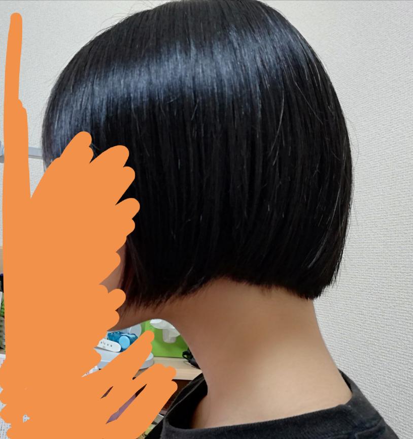 この髪の長さから1ヶ月で髪を結べる長さにまでなりますかね? あとヘアアクセルレーターは効果ありますか?