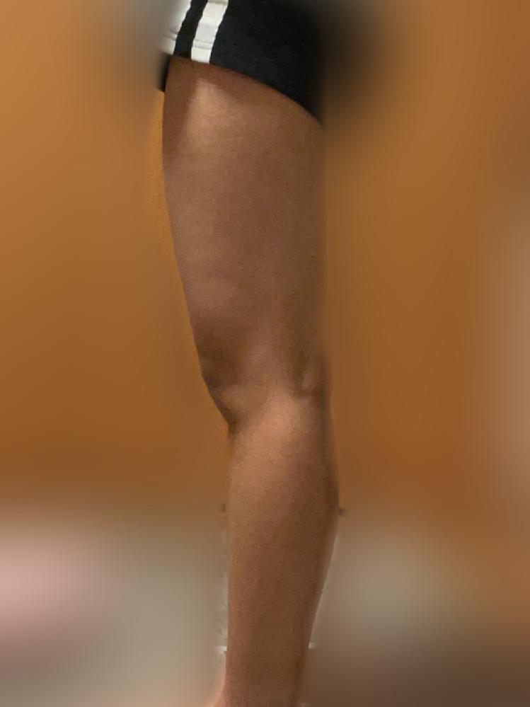 筋肉質な前ももを細くする方法を教えてください(;_;) 筋膜ローラー、ストレッチ、着圧ソックス、マッサージ、色々試してきているのですが、いまいち何が効いてるのか全く分かりません… アドバイスお願...