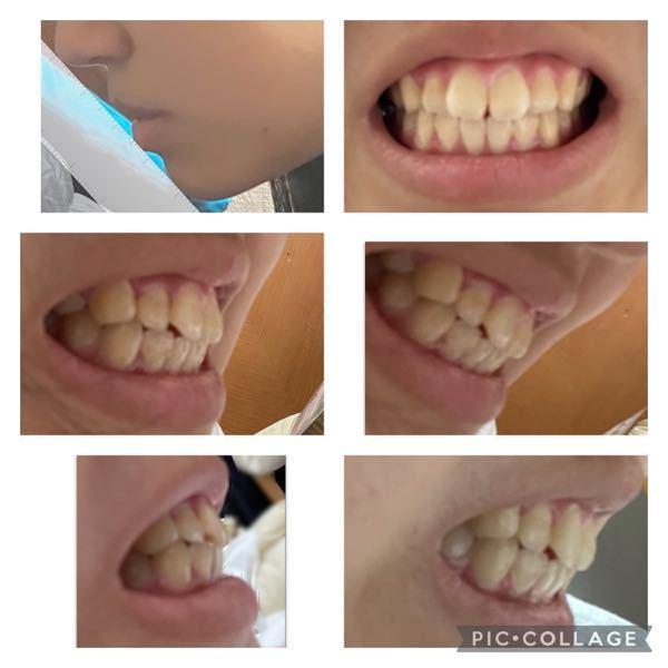 これって上顎前突ですか? (写真に不快な思いをされましたらすみません。) 友達は歯が真っ直ぐなのに、私は、小さい頃口呼吸が多かったのと、舌で口の周りを舐めるくせがあったせいか、歯が傾いてしまい...