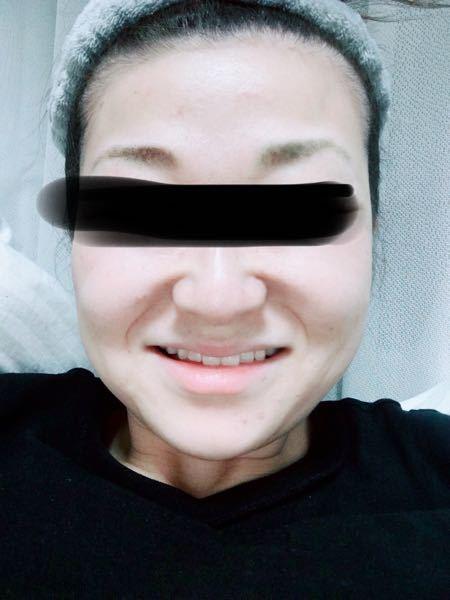 【歯を見せたい】笑っても歯が見えません。歯並びはまぁまぁ良いのですが、めちゃくちゃわざとらしく唇を上げない限り、歯が全部見えません。めちゃくちゃ法令線を出さないと綺麗な笑顔にならず悩んでいます。 愛想