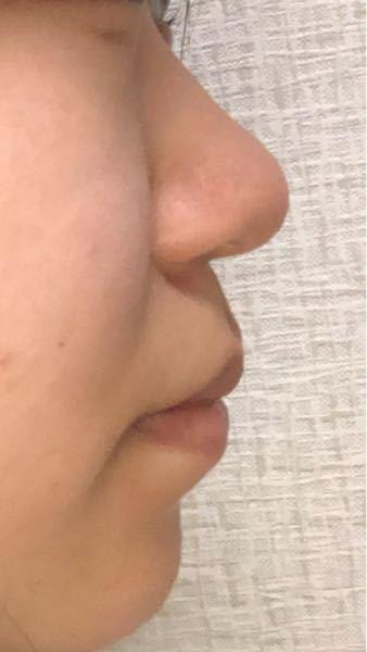 低い鼻とアデノイドなのが本当にコンプレックスです 写真の通り、口が出てて鼻が低く、鼻の付け根がありません。 すごく整形したいですが、まだ高校生なのであと3年は待たないといけないです ゴボを気に...