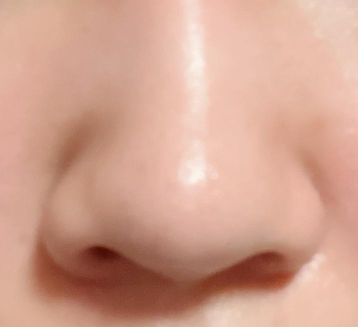 これは何鼻ですか? ※お見苦しい画像すみません…