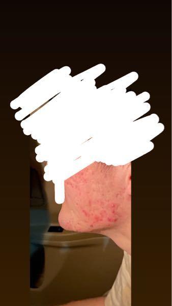 男性です。 高校生の頃からこんな感じのニキビが治らず悩んでます。 解決策はありますでしょうか。 皮膚科にも行って薬等貰ってますが治りません。