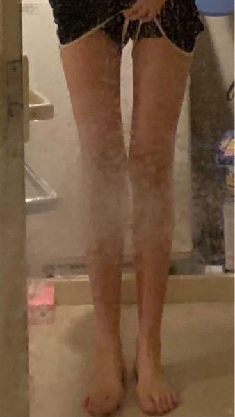 ちょっと見ずらいですけど この脚見て 病的だな〜って思いますか?