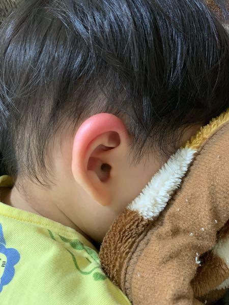 プールから帰ってきて耳を見たらすごい腫れてました。蕁麻疹でしょうか? また診てもらう場合、皮膚科ですか?耳鼻科?小児科…?どちらに行けばいいのか分かりません。