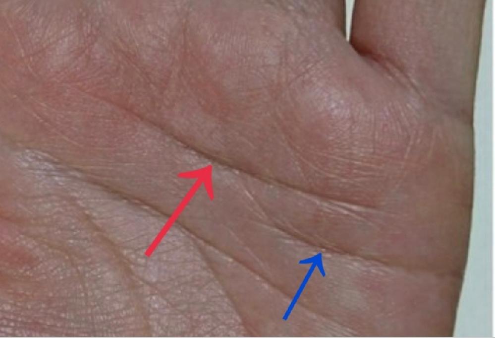 手相に関しまして 赤い矢印の線は感情線(二重感情線)だと思うのですが、青い矢印は感情線でしょうか?それとも反抗線と捉えるべきでしょうか? 宜しくお願い致しますm(__)m