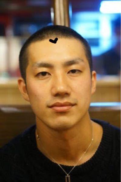 坊主について質問です。 下記の画像のような前側に少しだけ髪の毛が出ている方が何人かに数名坊主になった時みかけますが、これは生え方の問題なのでしょうか。 またこれを直すことは可能でしょうか。