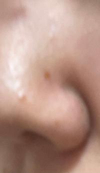 メラノCC 薬用しみ集中対策プレミアム美容液でこの鼻のシミは消えますか?前までなかったのにできて困っています。高校生です。