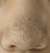 ※閲覧注意※助けてください。 長文失礼します。男子高校生17歳です。鼻や頬の毛穴が酷く、小学3年生の頃からずっと悩んでいます。写真のように、黒ずみ毛穴のような状態が8年以上続いています。今まで、この黒ずみ毛穴を治すために洗顔をかえたり、スキンケアの方法を変えたり、基礎化粧品を買い替えたりと色々してきましたが全く変化がありませんでした。洗顔をしたあとは黒ずみがなくなりますが、乳液を塗るころには...