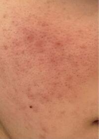 この汚肌を綺麗にする方法を教えて欲しいです。 お願いします…  ニキビ ニキビ跡 毛穴 黒ずみ