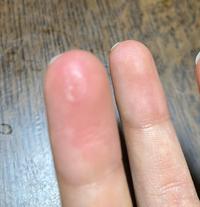 部活でお箏をやっている者なのですが、薬指を使い過ぎて皮が写真のようになってきました。(見づらくてすみません) 今やっている曲が指で弾くところが多いものなのでこの機会に指を硬くしたいなと思っているのですが、このまま放置して普通に弾き続けても硬くなるでしょうか? 皮はむかないほうがいいですかね。 部活は月曜と金曜で1日2時間ほどです。  補足等必要でしたら足していきます。 回答よろしく...