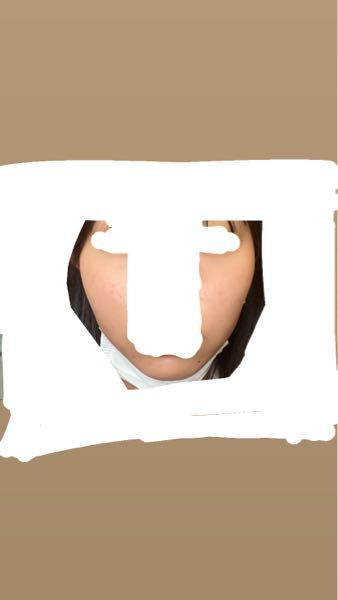 顔の骨がごつくていやです。どうすれば治りますか? マッサージなどは効果ないですよね。。